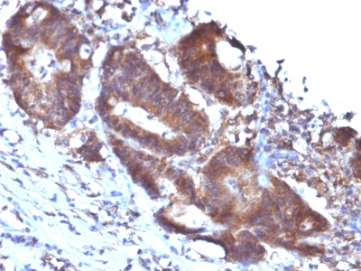 Formalin-fixed, paraffin-embedded human Colon Carcinoma stained with Transgelin Monoclonal Antibody (TAGLN/247)