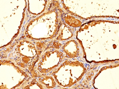 Formalin-fixed, paraffin-embedded human Thyroid stained with Thyroglobulin Monoclonal Antibody (6E1).