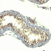Formalin-fixed, paraffin-embedded human Testicular Carcinoma stained with TGF alpha Monoclonal Antibody (TG86)