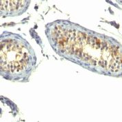 Formalin-fixed, paraffin-embedded human Testicular Carcinoma stained with TGF alpha Monoclonal Antibody (P/T1)