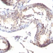 Formalin-fixed, paraffin-embedded human Testicular Carcinoma stained with TGF alpha Monoclonal Antibody (TGFA/1119)