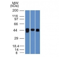 Western Blot of HepG2, PC3 and HeLa Cell Lysates with TIA1 Monoclonal Antibody (TIA1/1313).