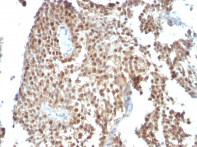 Formalin-fixed, paraffin-embedded human Colon Carcinoma stained with p53 Monoclonal Antibody (SPM59)