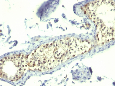 Formalin-fixed, paraffin-embedded human Testicular Carcinoma stained with Thymidylate Synthase Monoclonal Antibody (TS16).