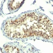 Formalin-fixed, paraffin-embedded human Testicular Carcinoma stained with Thymidylate Synthase Monoclonal Antibody (TMS715).
