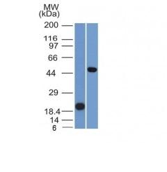 Western Blot Analysis (A) Recombinant Protein (B) Raji Cell Lysate Using PAX8 Monoclonal Antibody (PAX8/1491).