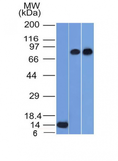Western Blot of Recombinant, PC3 and HeLa Cell Lysates using p63 Monoclonal Antibody (TP63/1786).