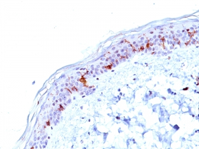 Formalin-fixed, paraffin-embedded human Skin stained with CD1a Monoclonal Antibody (O1).