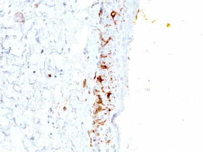 Formalin-fixed, paraffin-embedded human Skin stained with CD1a Monoclonal Antibody (C1A/711).