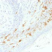 Formalin-fixed, paraffin-embedded human Skin stained with CD1a Recombinant Rabbit Monoclonal Antibody (C1A/156R).