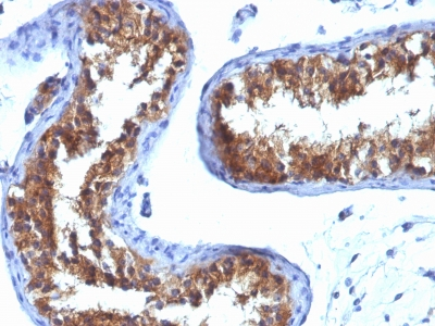 Formalin-fixed, paraffin-embedded human Breast Carcinoma stained with MVP Monoclonal Antibody (132).