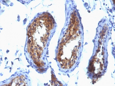 Formalin-fixed, paraffin-embedded human Testicular Carcinoma stained with MVP Monoclonal Antibody (SPM28).
