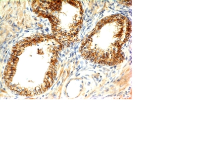 Formalin-fixed, paraffin-embedded human Skin stained with E-Cadherin Monoclonal Antibody (CDH1/1121+CDH1/1122)