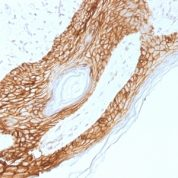 Formalin-fixed, paraffin-embedded human Skin stained with E-Cadherin Monoclonal Antibody (4A2).