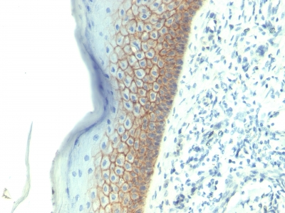 Formalin-fixed, paraffin-embedded human Skin stained with E-Cadherin Monoclonal Antibody (SPM381).
