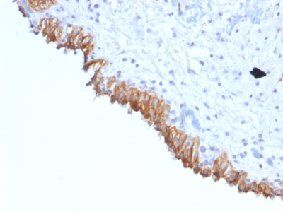 Formalin-fixed, paraffin-embedded human Colon Carcinoma stained with Lewis Y Monoclonal Antibody (A7-C/C8).