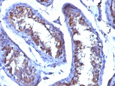 Formalin-fixed. Paraffin-embedded human Testicular Carcinoma stained with Testosterone Monoclonal Antibody (4E1G2)