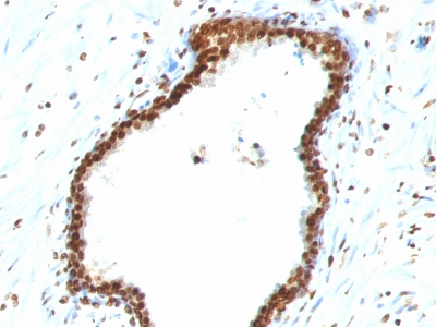 Formalin-fixed, paraffin-embedded human Tonsil stained with Double Stranded DNA Monoclonal Antibody (121-3)