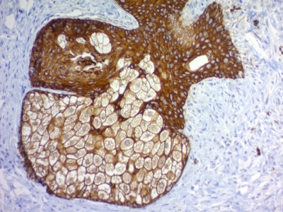 Formalin-fixed, paraffin-embedded human Skin stained with Cytokeratin, pan Monoclonal Antibody cocktail (PAN-CK).