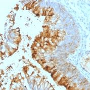 Formalin-fixed, paraffin-embedded human Colon Carcinoma stained with Lewis A Monoclonal Antibody (SPM279).