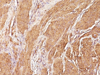Formalin-fixed, paraffin-embedded human Leiomyosarcoma stained with Muscle Specific Actin Monoclonal Antibody (SPM16)