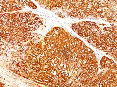 Formalin-fixed, paraffin-embedded human Melanoma stained with Melanoma Marker Monoclonal Antibody (A13 + T311 + HMB45).
