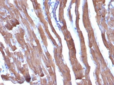 Formalin-fixed, paraffin-embedded human Leiomyosarcoma stained with Muscle Specific Actin Monoclonal Antibody (HHF35 + MSA/953)