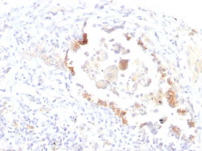 Formalin-fixed, paraffin-embedded human Lung Carcinoma stained with Lewis Y Monoclonal Antibody (LWY/1463).