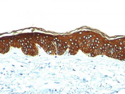 Formalin-fixed, paraffin-embedded human Skin stained with Cytokeratin, HMW Monoclonal Antibody (AE-3).