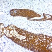 Formalin paraffin Rat Stomach stained with Cytokeratin, HMW Monoclonal Antibody (KRTH/176).