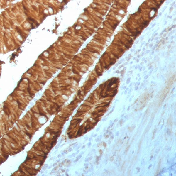 100 ul of predilute SingleStep™ Poly-HRP conjugated goat anti-rabbit secondary antibody was incubated 30 minutes following anti-EpCAM staining of human rectum samples.  Excellent signal intensity is observed in the absence of any additional amplification step.