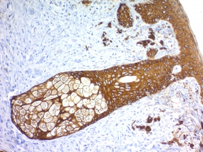 Formalin-fixed, paraffin-embedded human Skin stained with Cytokeratin, HMW Recombinant Rabbit Monoclonal Antibody (KRTH/1576R).
