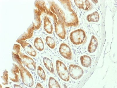 Formalin-fixed, paraffin-embedded Rat Colon stained with Beta-Catenin (p12) Monoclonal Antibody (CTNNB1/157).