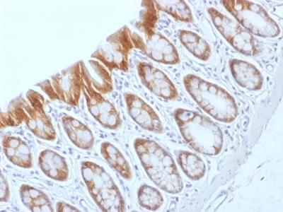 Formalin-fixed, paraffin-embedded Rat Colon stained with Beta-Catenin (p12) Monoclonal Antibody (CTNNB1/159).