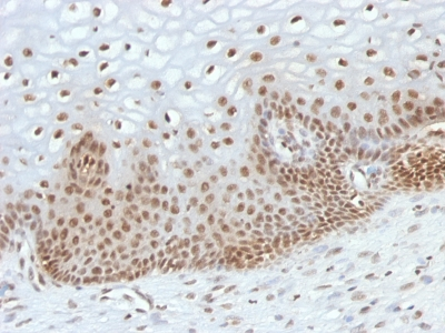 Formalin-fixed, paraffin-embedded human Cervical Carcinoma stained with TOX3 Monoclonal Antibody (TOX3/1123).