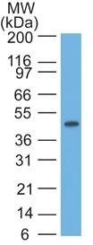Western Blot of HeLa Lysate using CK17 Monoclonal Antibody (E3).