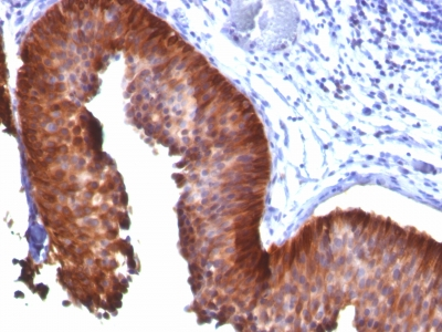 Formalin-fixed, paraffin-embedded human Bladder Carcinoma stained with Cytokeratin 18 Monoclonal Antibody (KRT18/835).