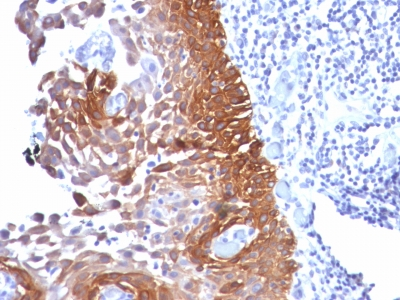 Formalin-fixed, paraffin-embedded human Cervical Carcinoma stained with Cytokeratin 18 Monoclonal Antibody (Cocktail).