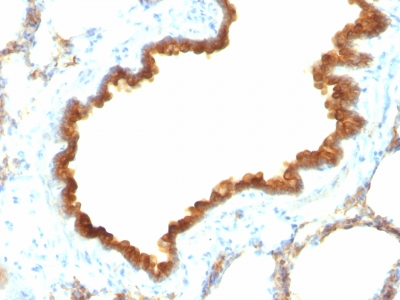 Formalin-fixed, paraffin-embedded Rat Lung stained with Cytokeratin 19 Monoclonal Antibody (KRT19/8)