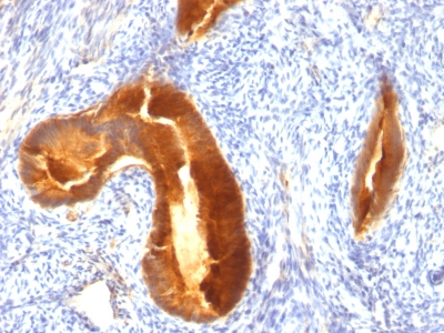 Formalin-fixed, paraffin-embedded human Endometrial Carcinoma stained with EMA Monoclonal Antibody (MUC1/955).