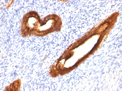 Formalin-fixed, paraffin-embedded human Endometrial Carcinoma stained with MUC-1 / EMA Monoclonal Antibody (MUC1/52).