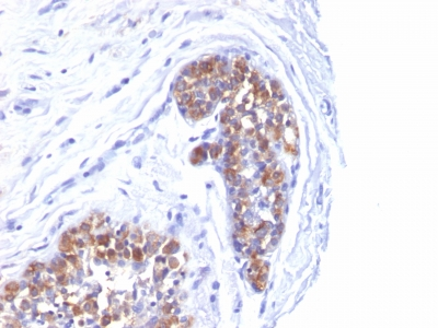 Formalin-fixed, paraffin-embedded human Breast Carcinoma stained with MUC-1 / EMA Monoclonal Antibody (MUC1/52).