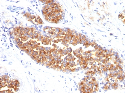 Formalin-fixed, paraffin-embedded human Breast Carcinoma stained with MUC1 / EMA Monoclonal Antibody (MUC1/845).