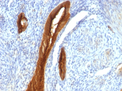Formalin-fixed, paraffin-embedded human Endometrial Carcinoma stained with EMA Monoclonal Antibody (139H2).
