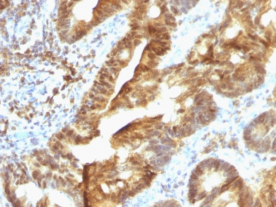 Formalin-paraffin human Colon Carcinoma stained with TDP2 MAb (TDP2/1258)