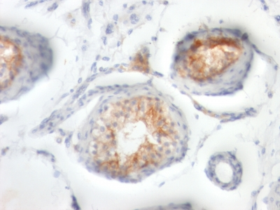Formalin-fixed, paraffin-embedded human Testicular Carcinoma stained with CD147 Monoclonal Antibody (BSG/963).