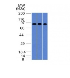 Western Blot of A549, HepG2 & HCT116 Cell Lysates with Villin Monoclonal Antibody (VIL1/1325).