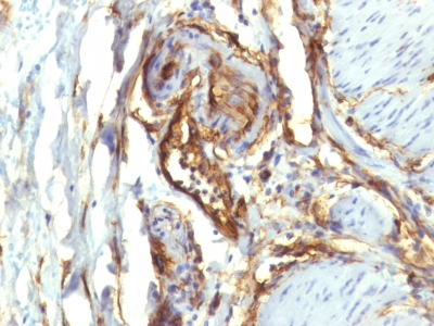 Formalin-fixed, paraffin-embedded human Colon Carcinoma stained with CD34 Monoclonal Antibody (QBEnd/1 + HPCA1/763)