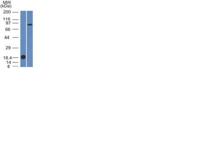 Western Blot Analysis (A) Recombinant Protein (B) human Stomach lysate Using E-Cadherin Monoclonal Antibody (CDH1/1525).