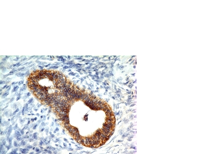 Formalin-paraffin human Colon Carcinoma stained with E-Cadherin MAb (CDH1/1525).